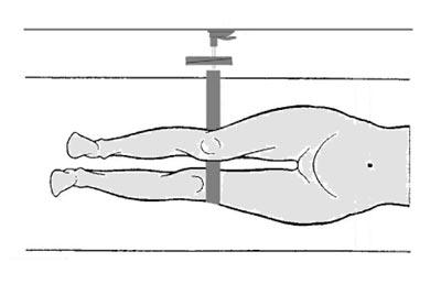 Krafmessung in den unteren Extremitäten mit dem IsoForceControl Dynamometer